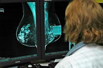 El Hospital General de Ciudad Real realiza más de 800 mamografías en 3D en el último trimestre