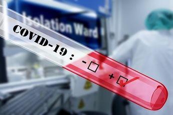 Los farmacéuticos de España se forman para hacer test de la Covid-19