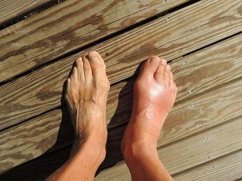 ¿Cómo evitar los esguinces de tobillo en verano?